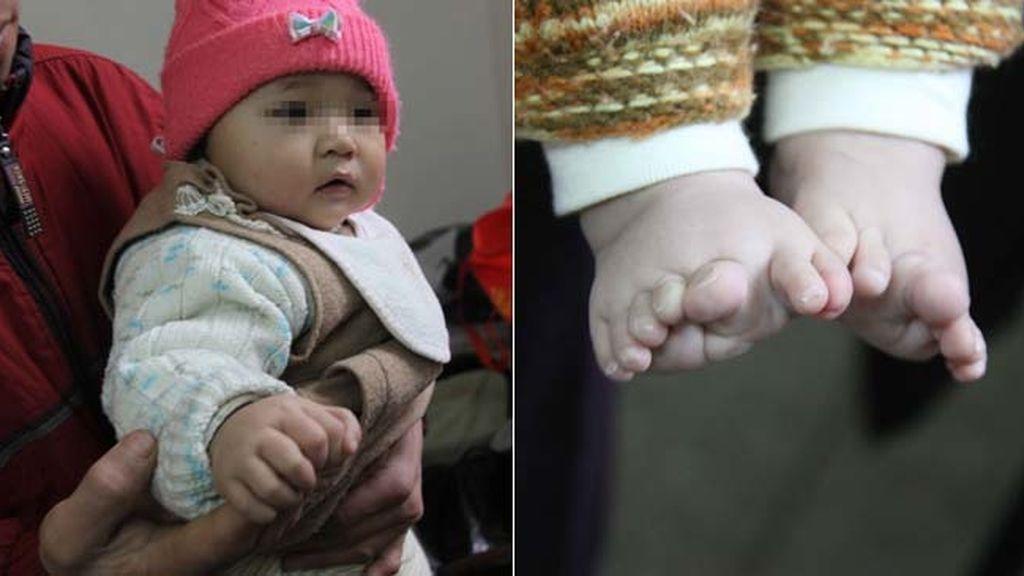 Un bebé nace con 26 dedos