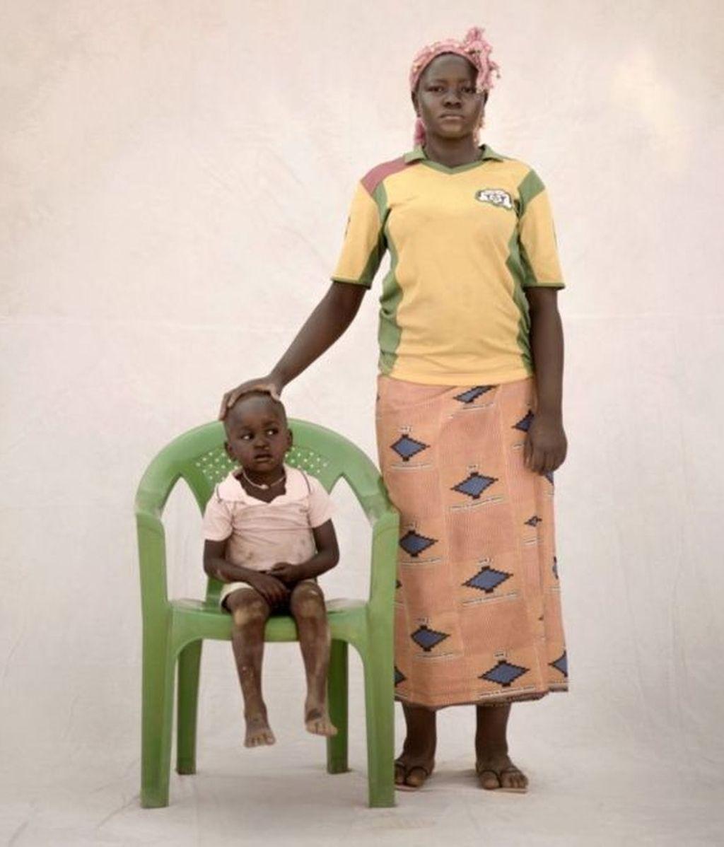 Poko, 15 (Burkina Faso)