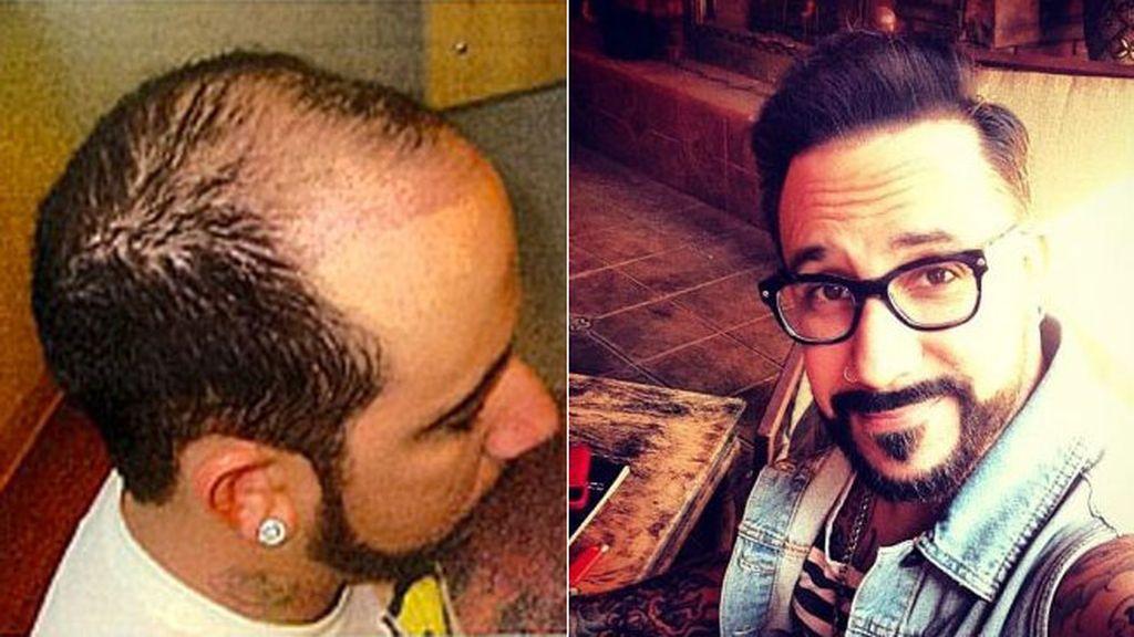 El trasplante de pelo llegó