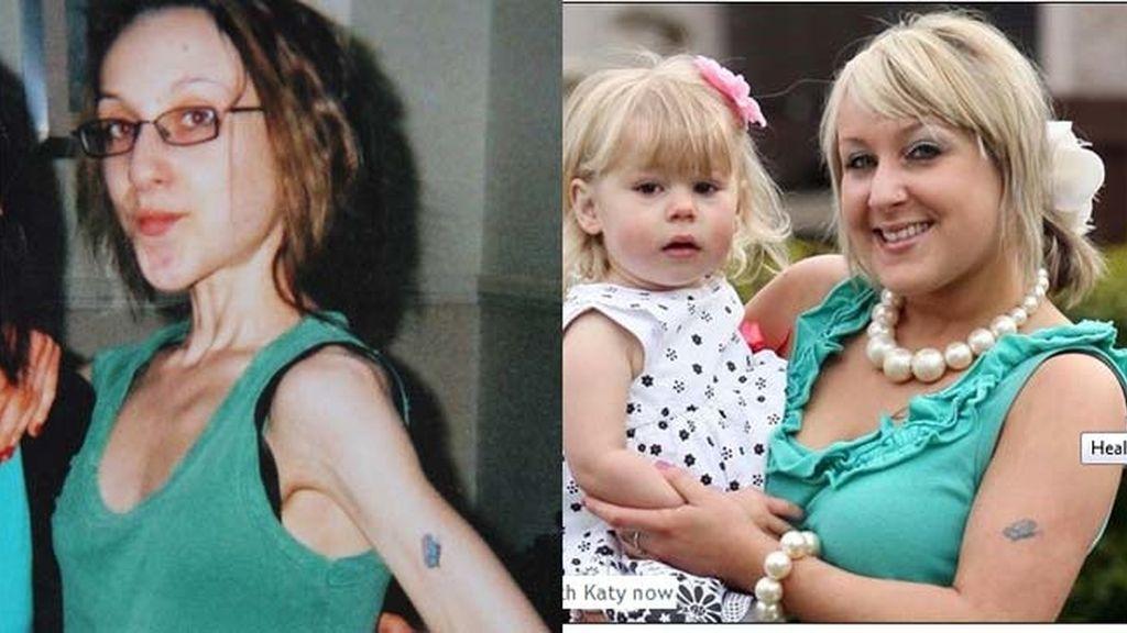 Su bebé le salvó de morir por la anorexia