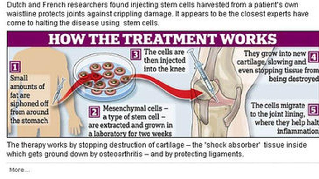 Vacuna celularpara frenar la artritis