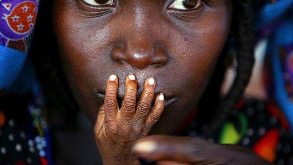 Los dedos de un niño desnutrido sobre los labios de su madre en Nigeria