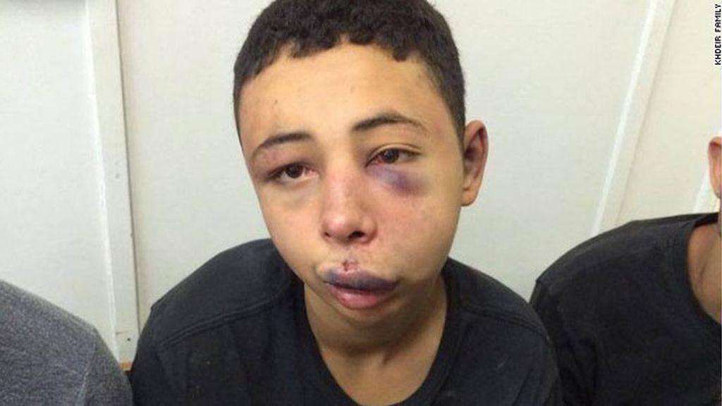 Liberado el adolescente palestino-estadounidense linchado por policías israelíes