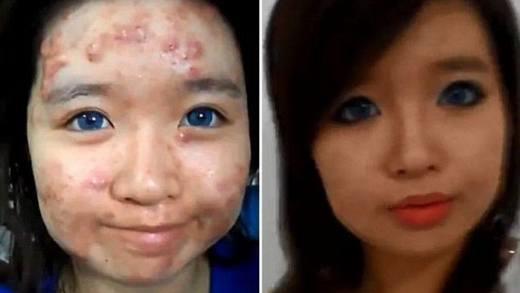 Elaine Mokk da consejos de maquillaje para tapar el acné