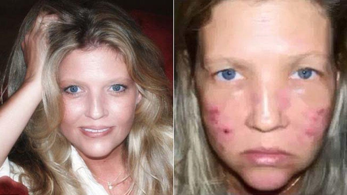 Queda desfigurada para siempre por un tratamiento de laser en un spa