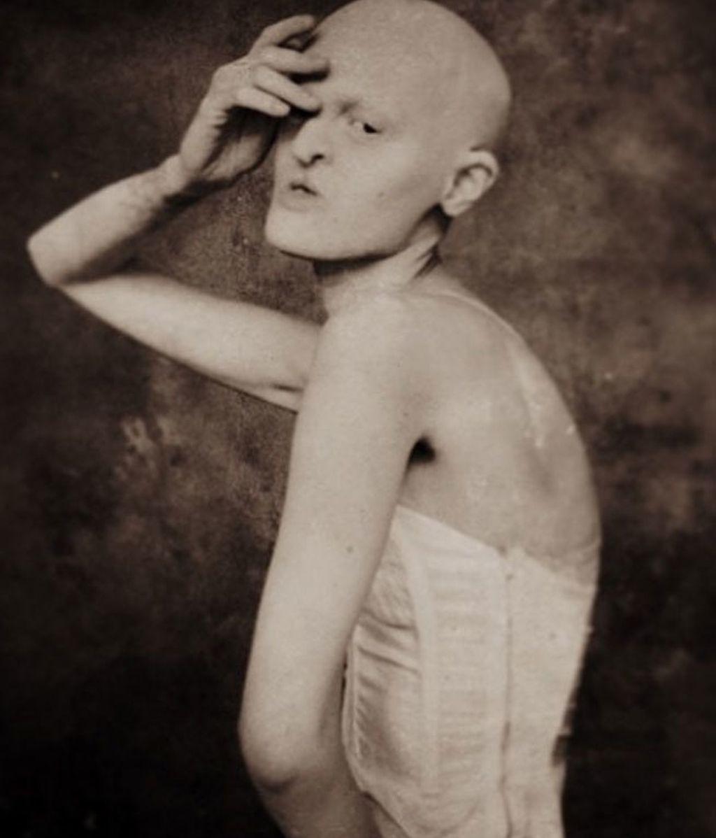 La modelo Melanie Gaydos padece Displasia Ectodérmica