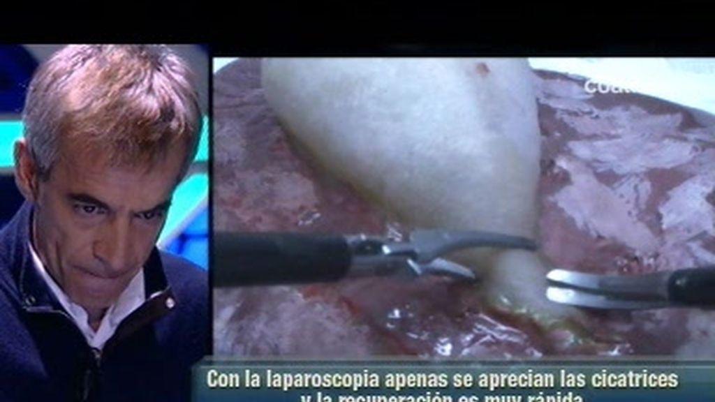 Imanol Arias extirpa una vesícula en directo