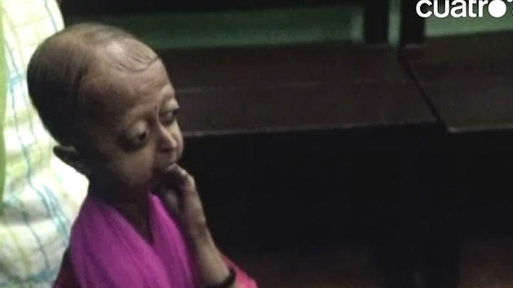 Tiene 19 años y es la única chica afectada de progeria de su familia