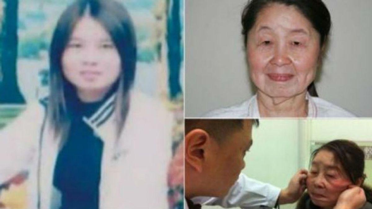 paciente china, piel laxa, mujer de 29 años luce como una de 80