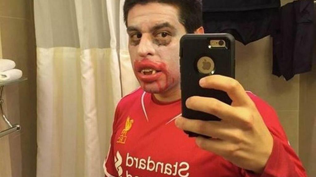 Muchos aprovecharon la noche de Halloween para sacar los dientes