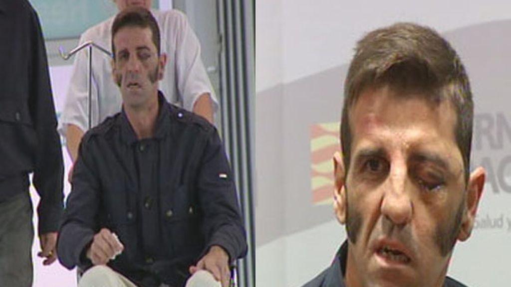 El diestro Juan José Padilla recibe el lata hospitalaria