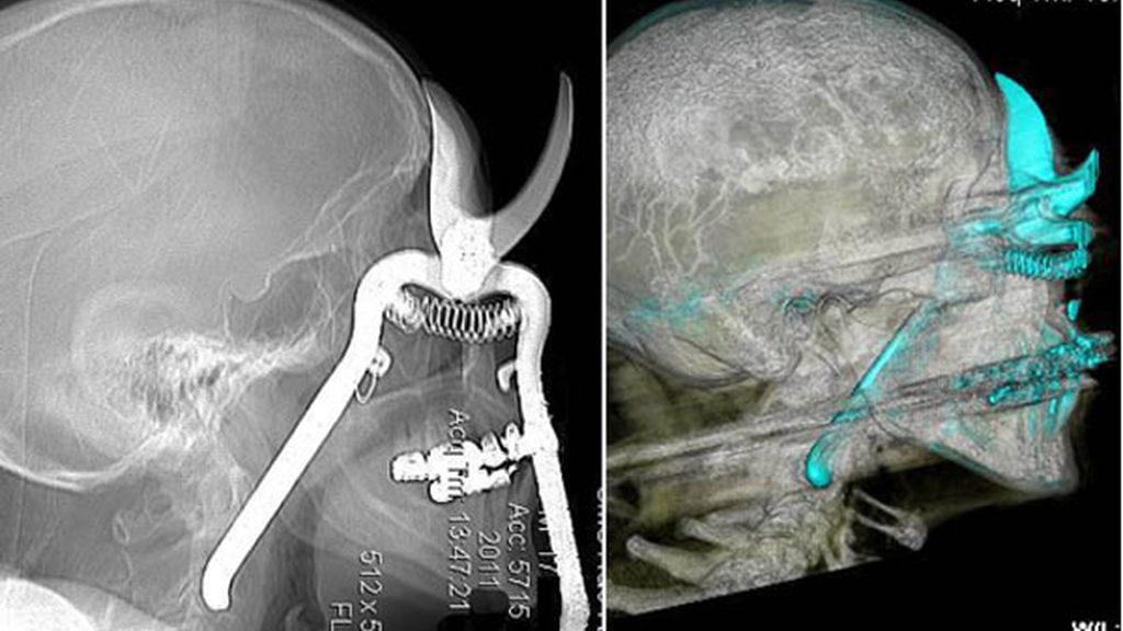 Sobrevive tras introducirse por accidente unas tijeras de podar por un ojo