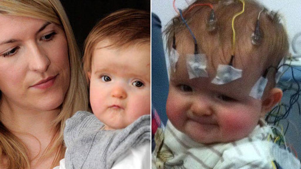 Millie sufre 225 ataques epilépticos al día con sólo ocho meses