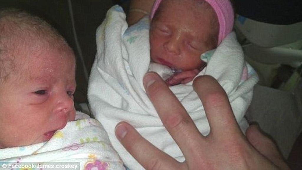 Una mujer da a luz a gemelos y no sabía que estaba embarazada