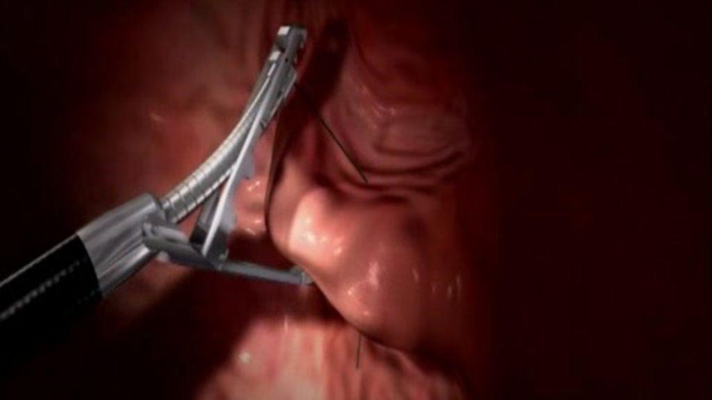 Operado del estómago por la boca