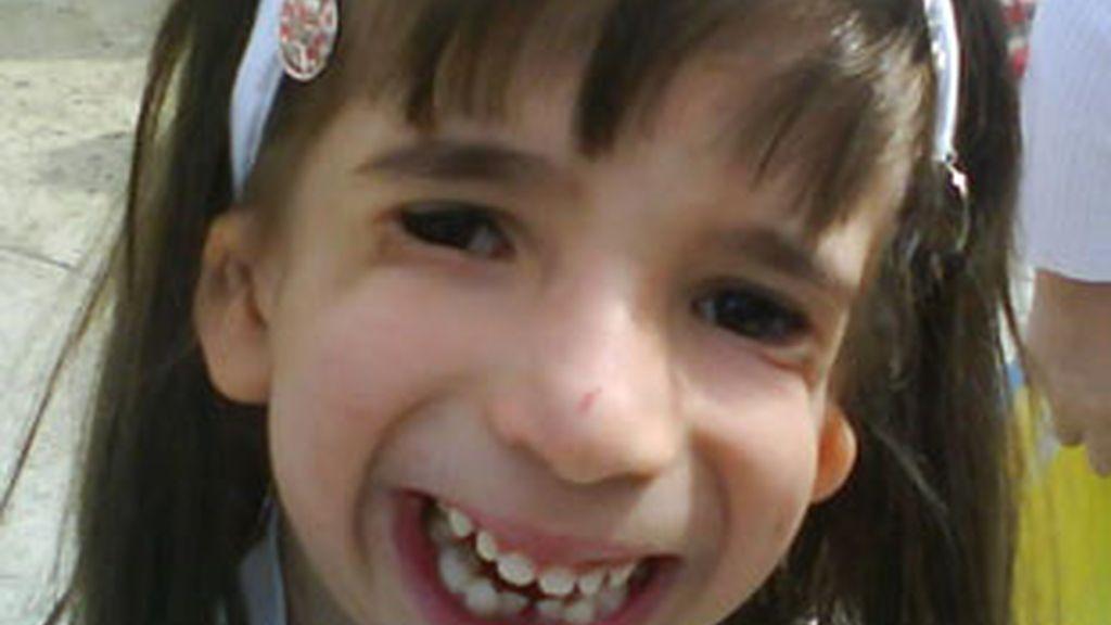 Zaira Sardina Gil padece el síndrome de Treacher Collins. Video: Informativos Telecinco