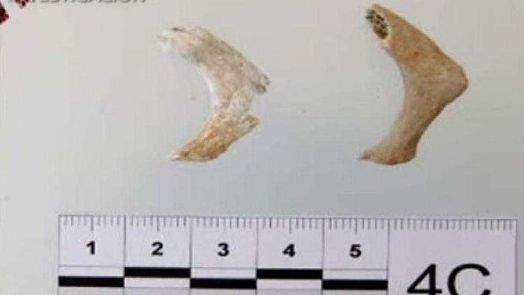 El Informe Etxberría: son huesos humanos infantiles
