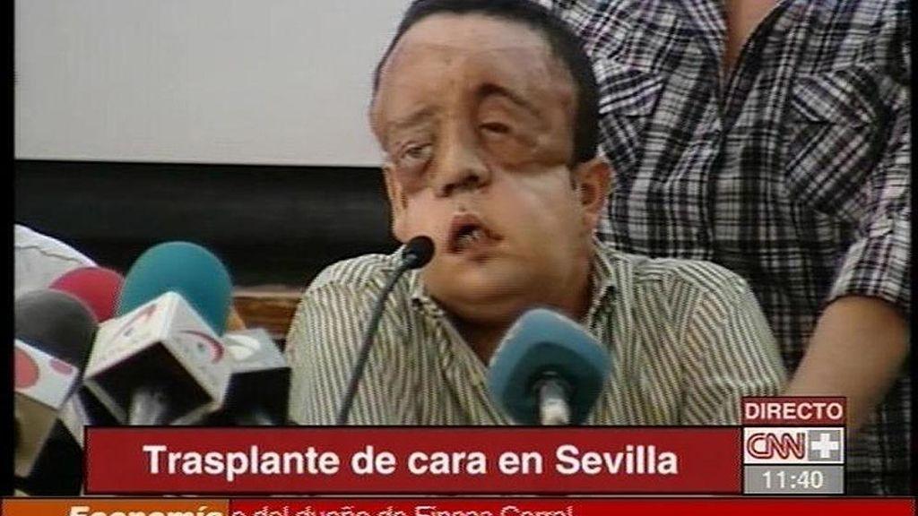 Comparecencia del segundo transplantado de cara en España.