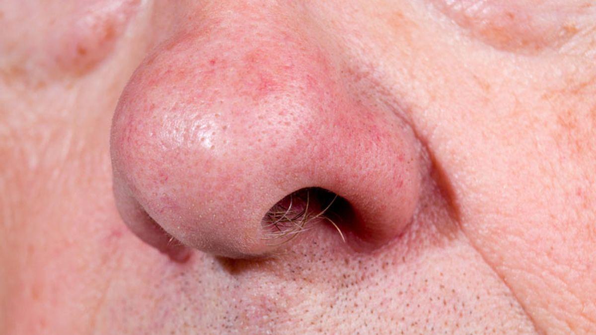olor corporal, nariz, olores, personas mayores, edad, diferenciación