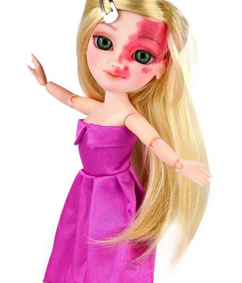 Las imperfecciones llegan a las muñecas