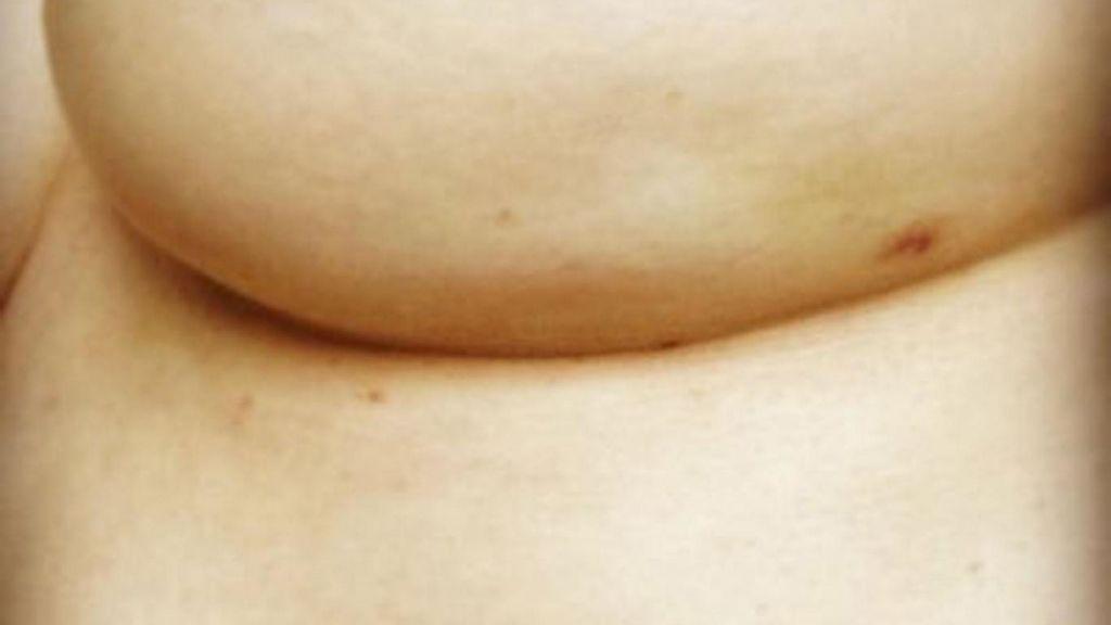 Foto viral que muestra uno de los síntomas del cáncer de mama