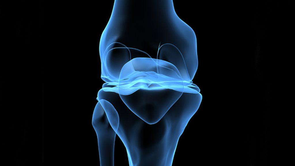 Una terapia logra ralentizar la progresión de la artrosis de rodilla