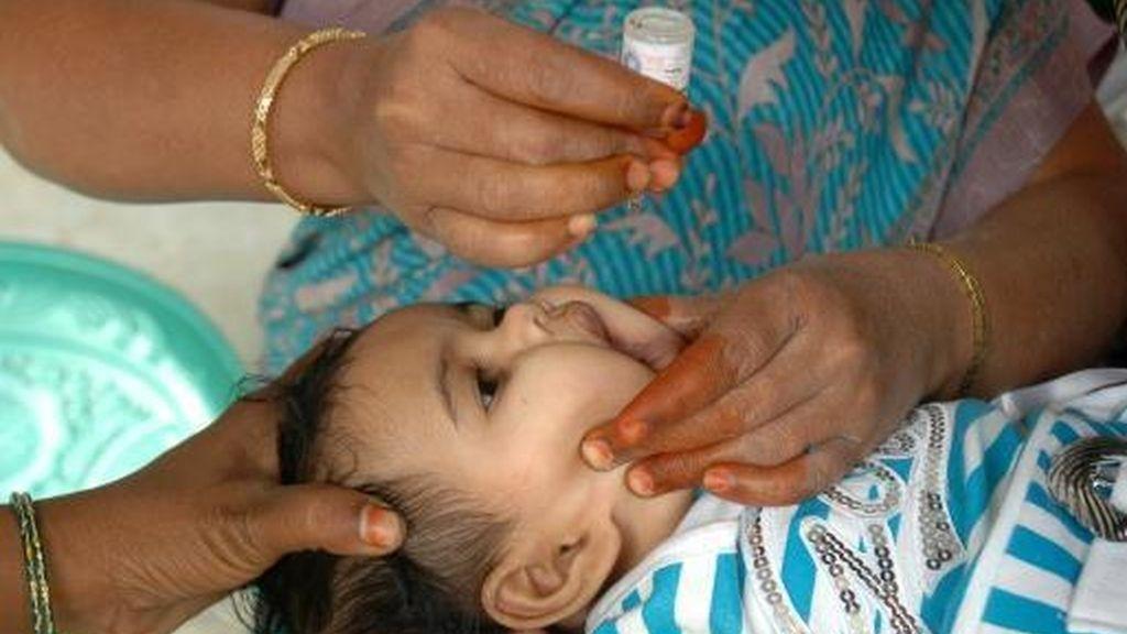 polio, bebé, niño enfermo
