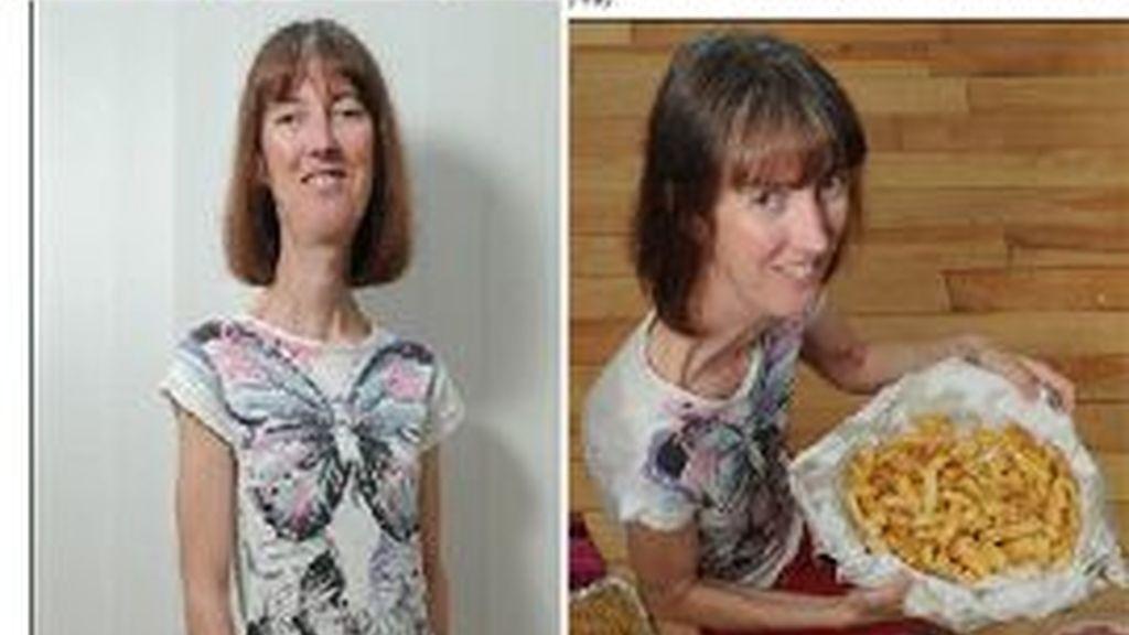 Carole padece una extraña enfermedad que impide que engorde