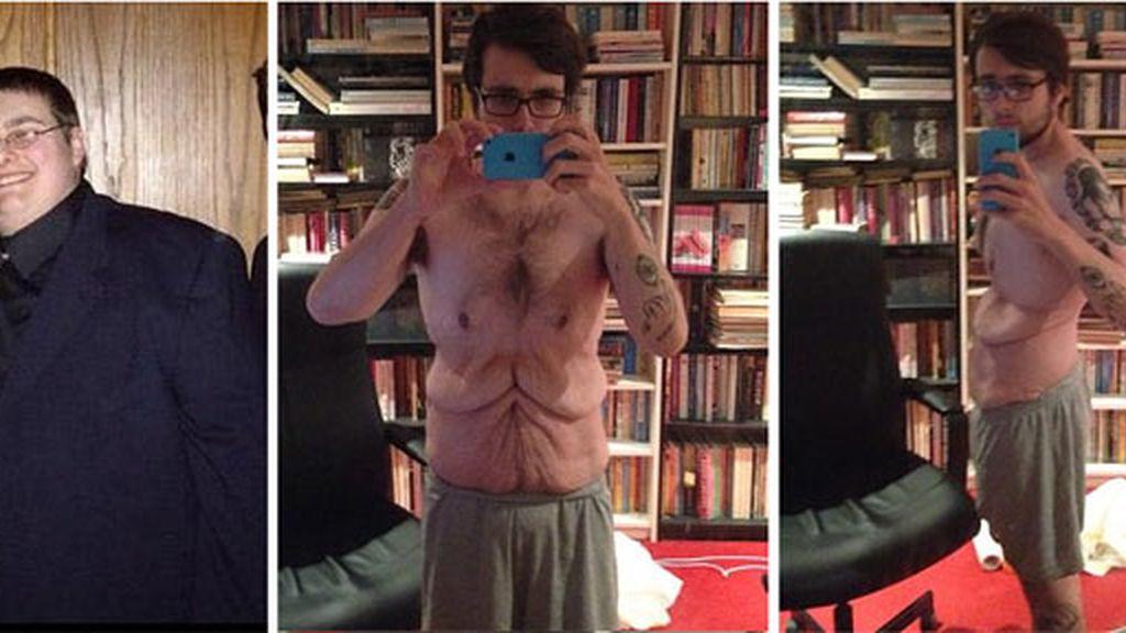 John Burton exhibe su cuerpo tras perder más de 110 kilos en tres años