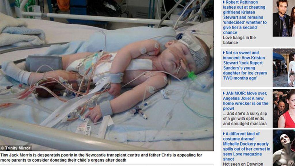 Chris Morris de 15 meses, a la espera de un corazón compatible