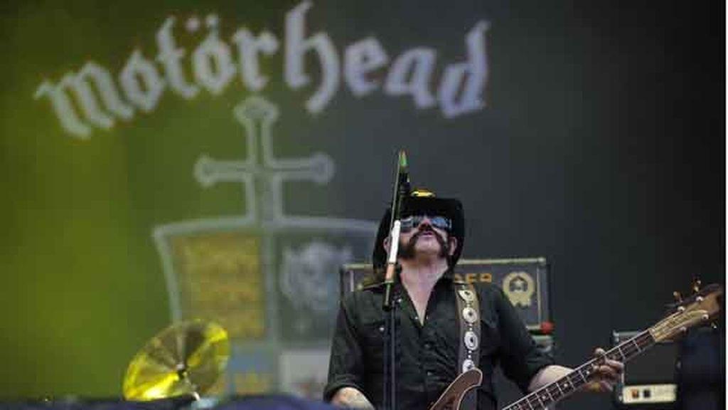 Detectan una lesión cerebral como consecuencia de mover la cabeza en un concierto de 'heavy metal'