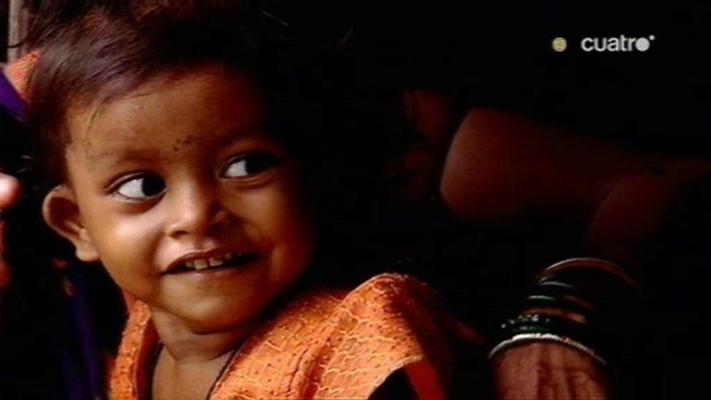 Lakshmi es la chica que nació con 8 extremidades