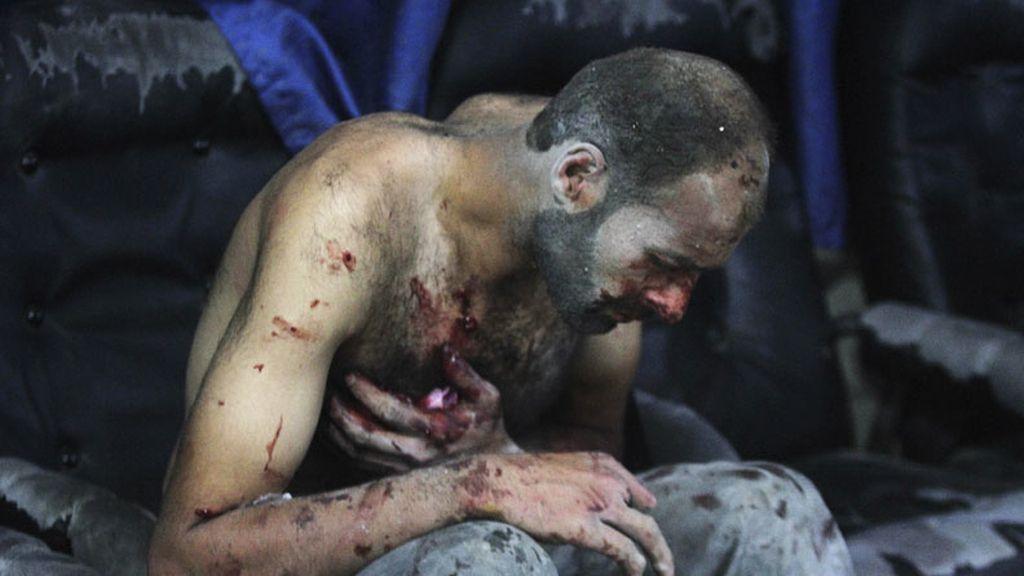 Los heridos de Siria