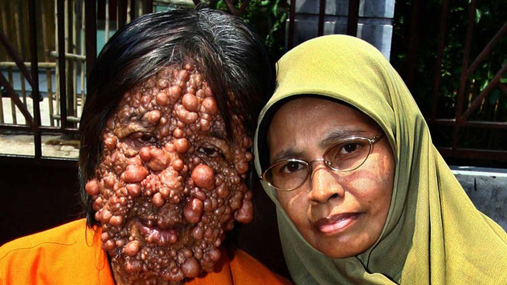 Vivir con el cuerpo cubierto de tumores
