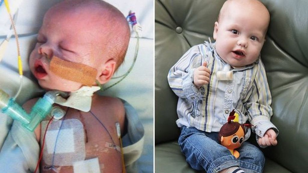 Sufre siete ataques de corazón con solo nueve meses de vida