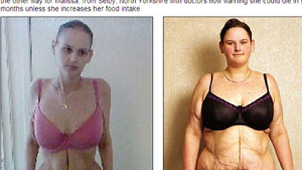 La adolescente más gorda de Reino Unido ahora sólo pesa 51 kilos.