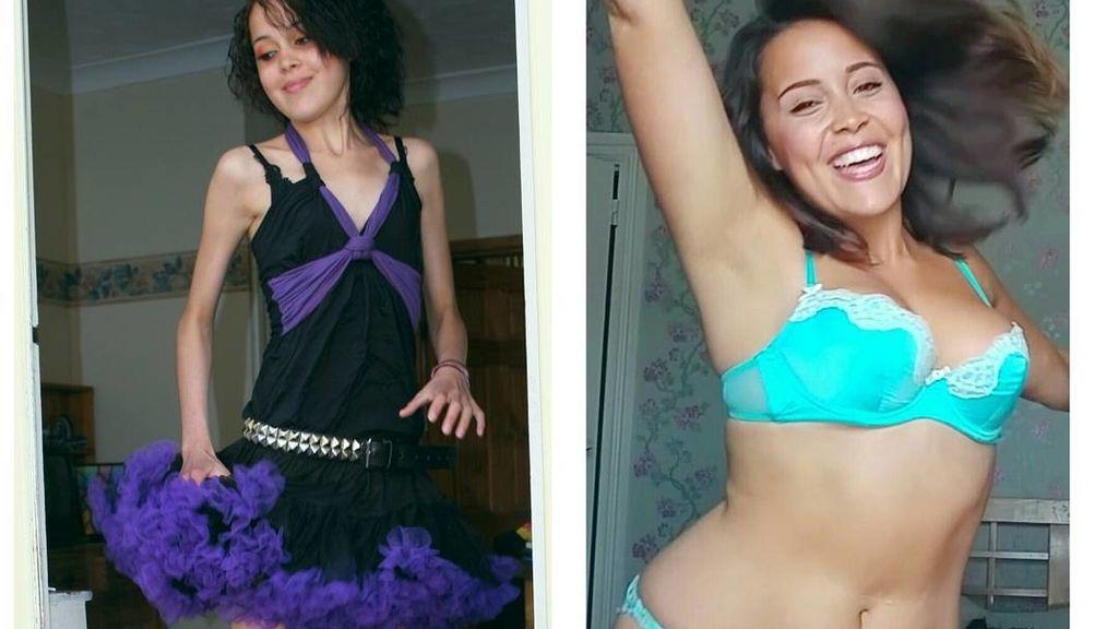 Megan Jayne antes y depués de anorexia