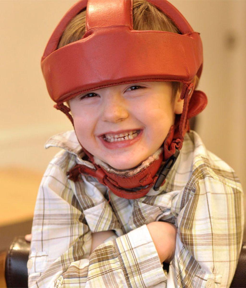 Tom Morley debía llevar un casco acolchado al sufrir 45 ataques epilépticos al día