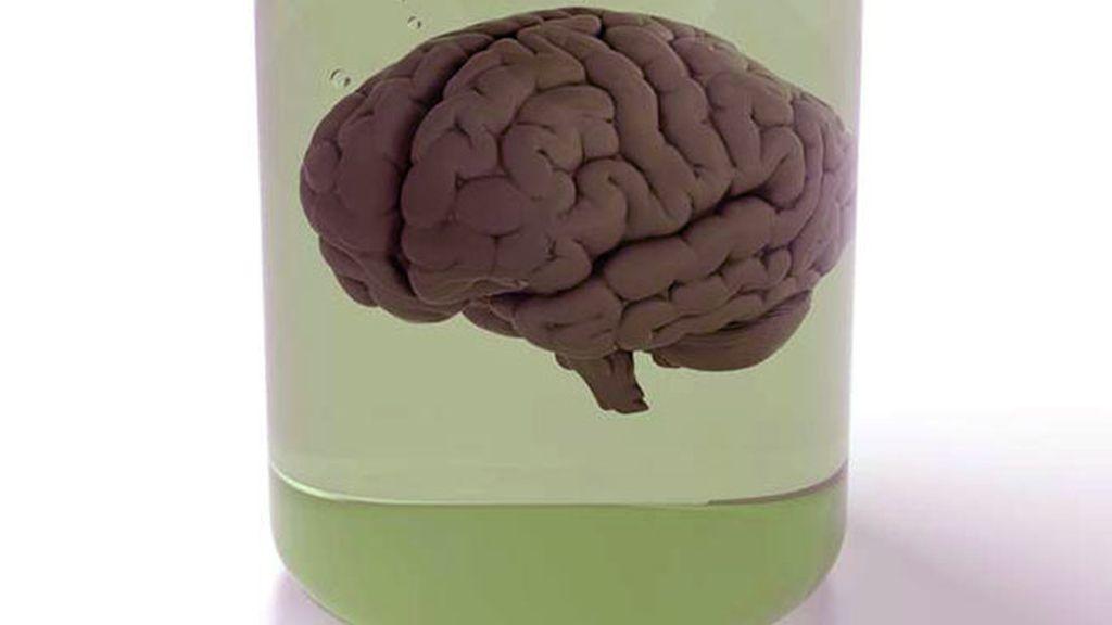 cerebros, cerebro
