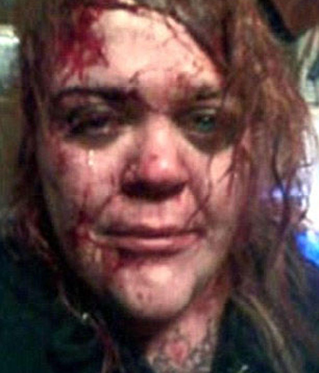 Una mujer cuelga un impactante 'selfie' en Facebook para buscar ayuda tras un ataque