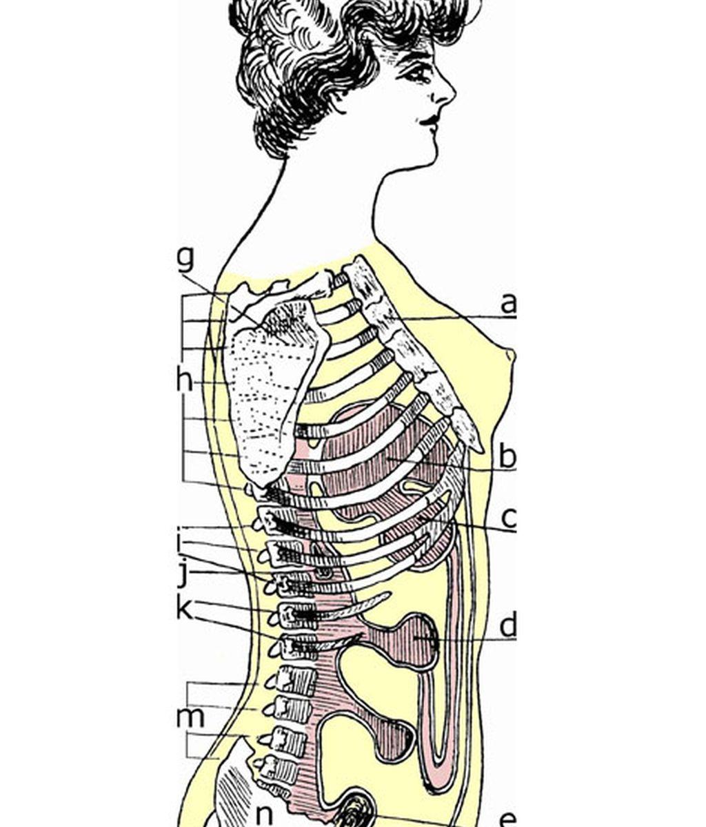 El corsé, la moda que destruye el cuerpo femenino