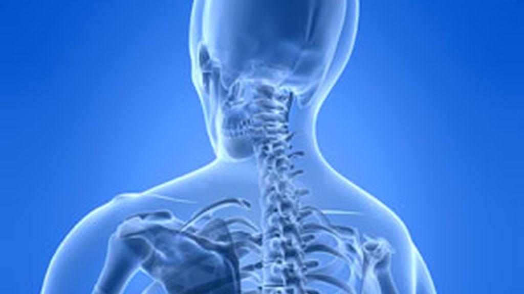 La dosis más alta de radiación es en la piel del pecho. Foto: GTRES