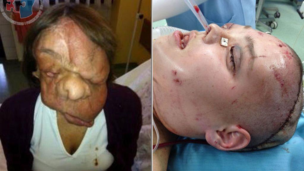 Le hacen un trasplante total de cara porque un tumor le había deformado