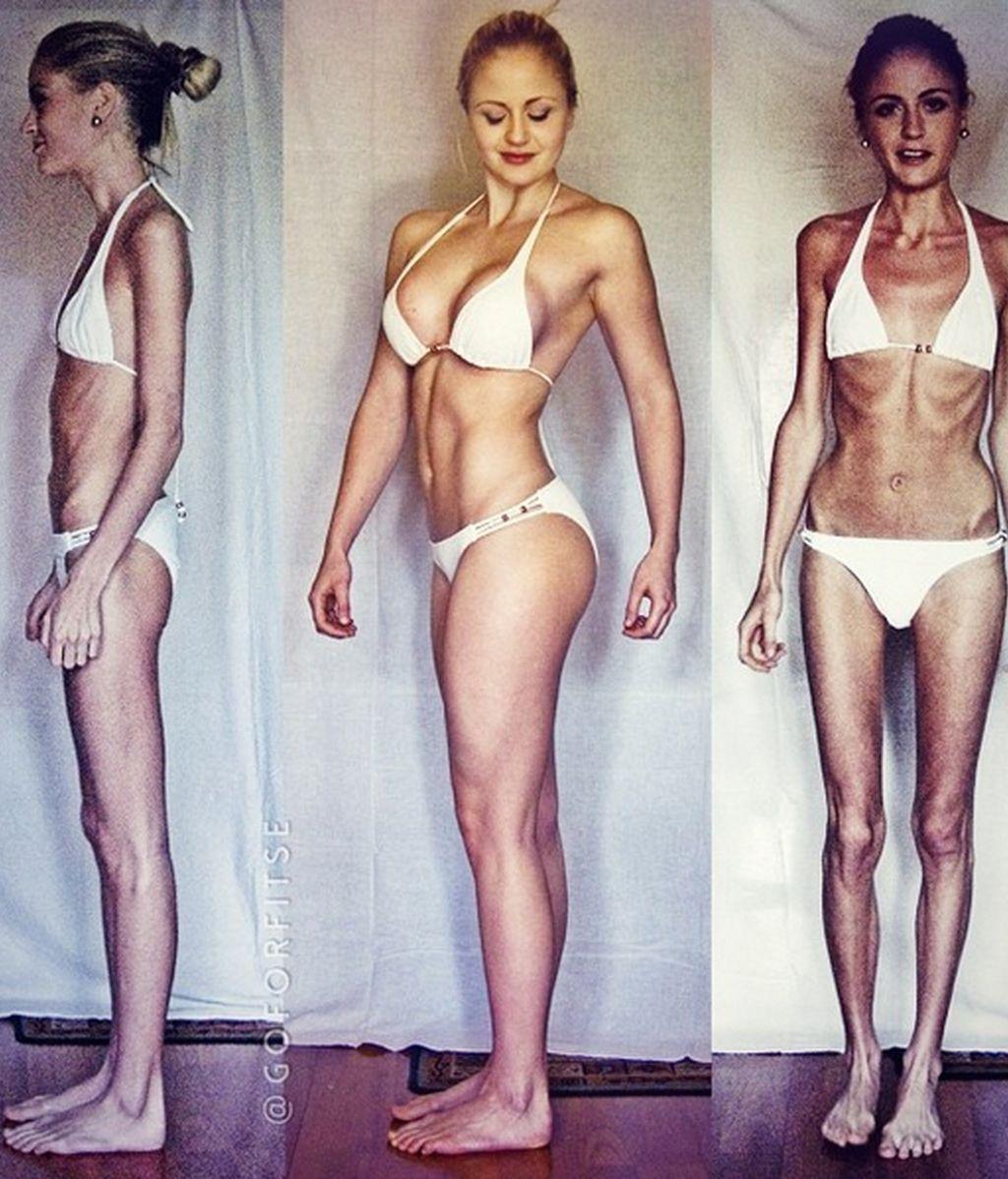 La increíble recuperación de una joven con anorexia gracias al levantamiento de pesas