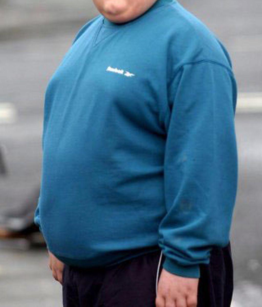 Cada vez más niños padece sobrepeso