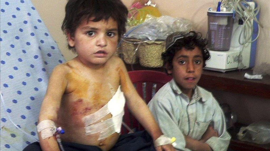 Un niño es atendido hoy en el hospital tras resultar herido en el atentado de ayer contra una comisaría de policía en Kandahar (Afganistán). Las autoridades afganas investigan hoy el ataque perpetrado ayer por un comando talibán contra la principal comisaría de la ciudad sureña de Kandahar, que causó la muerte de al menos 21 personas. EFE