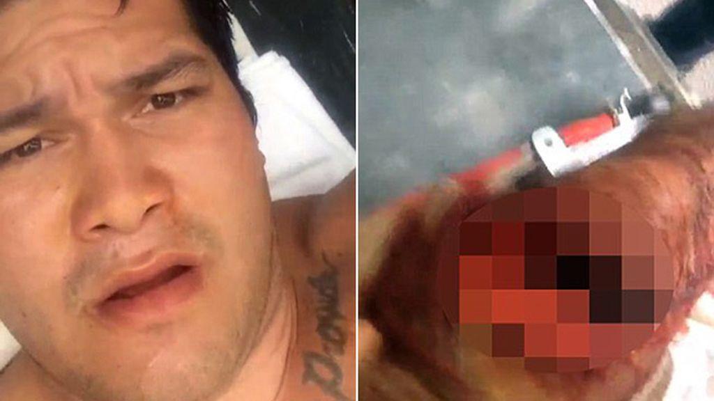 Graba un 'selfie' tras ser atacado por un tiburón