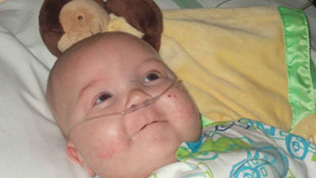 El bebe nació con una enfermedad rara que priva a su sangre del oxigeno necesario para un correcto funcionamiento del sistema cardiovascular. FOTO: IberPress