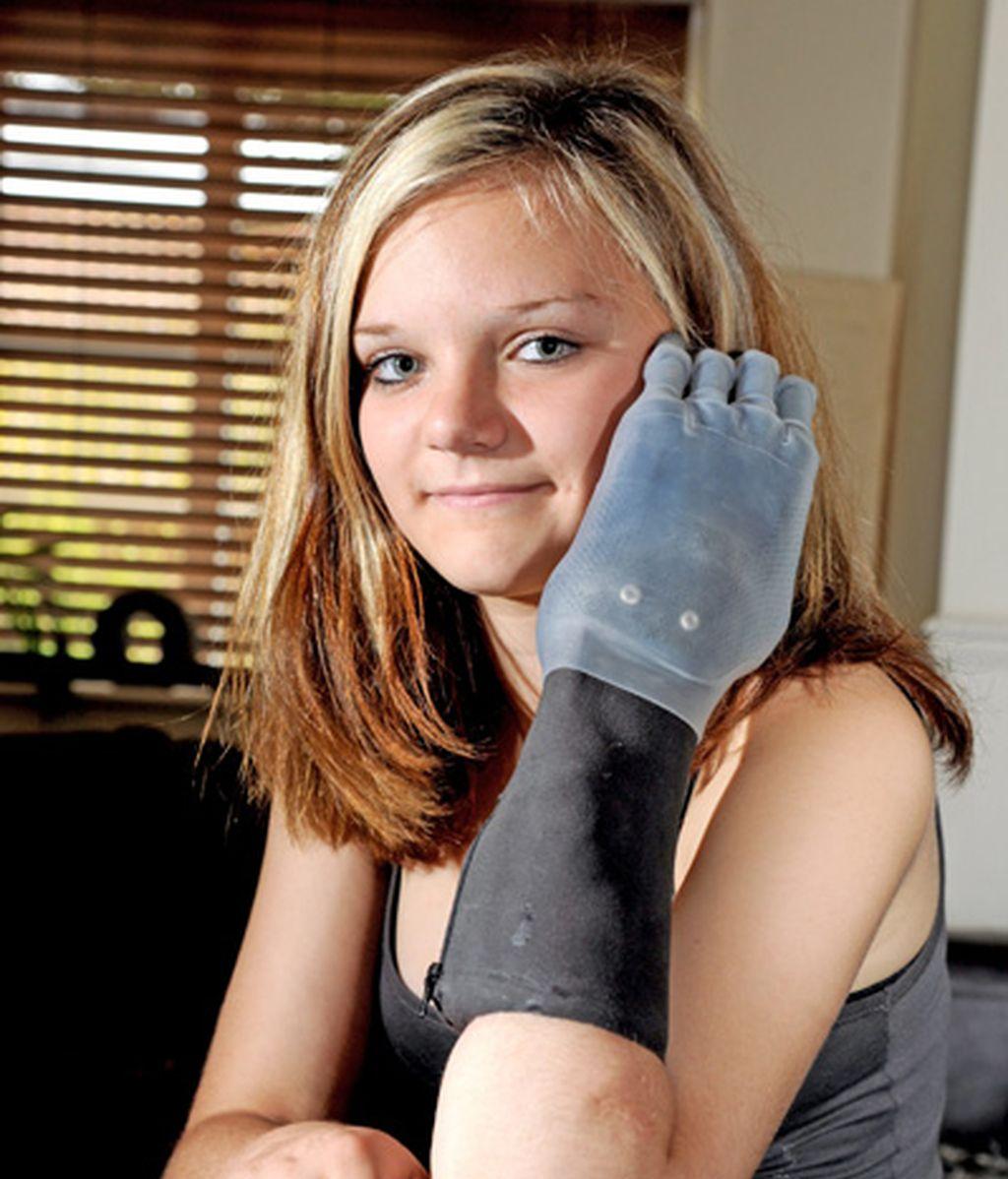 Feliz con sus nuevos dedos
