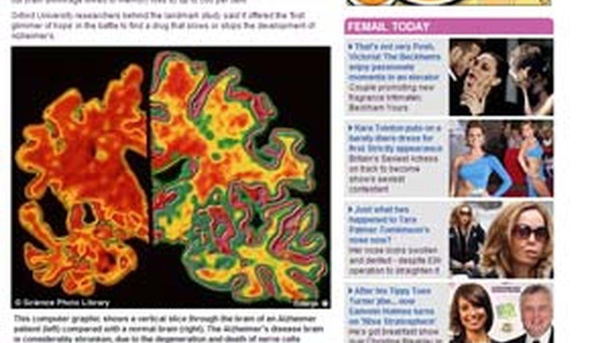 El cerebro con Alzheimer (izq) aparece más encogido que un cerebro normal (dcha). Foto: Dailymail.com
